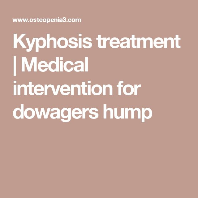 Kyphosis treatment | Medical intervention for dowagers hump