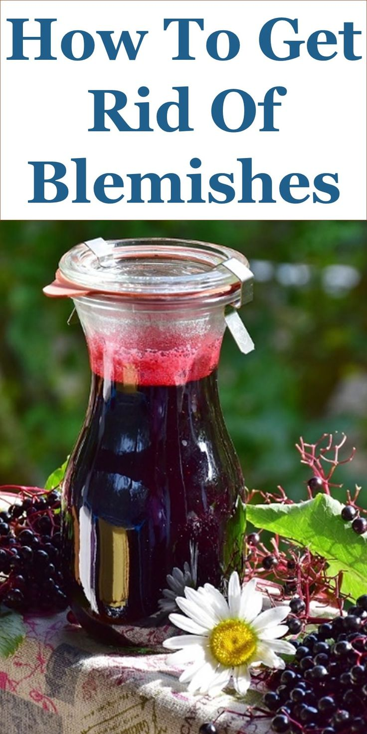 How To Get Rid Of Blemishes – 19 Home Remedies: This Guide Shares Insights On The Following;  How To Remove Blemishes And Spots In One Day, How To Remove Blemishes Overnight, Blemish Free Skin In 10 Days, How To Get Rid Of Blemishes And Acne Scars, Blemishes Removal Cream, Dark Blemishes On Face, Blemishes On Face Meaning, What Is Blemishes, Etc.