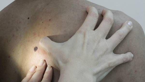 """Las enfermedades """"profundas"""" de la piel afectan a 1,2 millón de argentinos"""