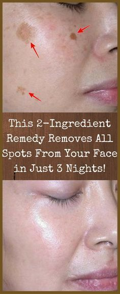 AMAZING: This 2 ingredient remedy removes all spots from your face in just 3 nights!