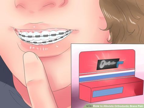 5 Ways to Alleviate Orthodontic Brace Pain - wikiHow