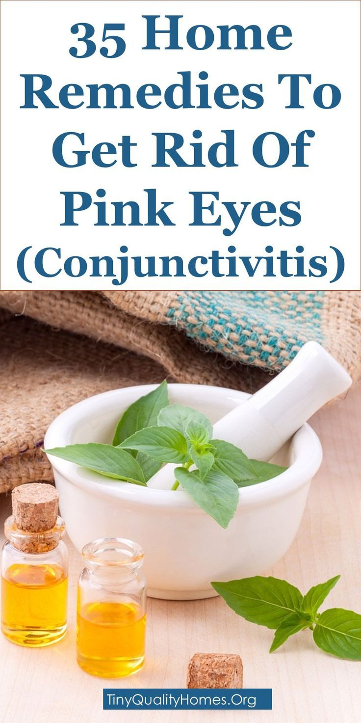 35 Home Remedies To Get Rid Of Pink Eyes (Conjunctivitis): This Article Discusses Ideas On The Following; Pink Eye Treatment, Toddler Eye Infection Yellow Discharge, Toddler Eye Discharge No Redness, Pink Eye Symptoms, How Is Pink Eye Spread, Home Remedies For Pink Eye In Babies, Pink Eye In Babies Pictures, What Causes Pink Eye, Etc.