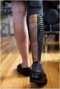 Industrial designer Scott Summit makes beautiful prosthetics.