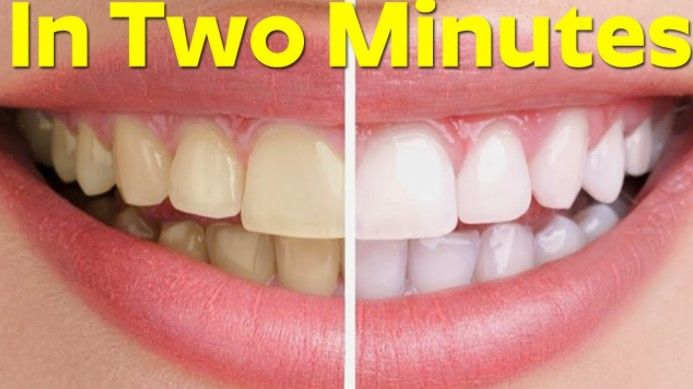 Healthy and white teeth are something that everybody desires. But to achieve this, it can take a lot of effort and time. You can go to the dentists for a whitening procedure, but it will cost you a lot, plus it`s not that healthy for your teeth. There are many whitening gels you can buy, …
