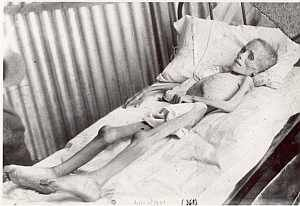 "Lizzie van Zyl. South Africa concentration camps claimed the lives of 27,972 Boers. Of these, 22,074 were children like Lizzie. Emily Hobhouse, an English activist, spent six months in SA from Jan to June 1901 visiting Bloemfontein and six other camps. She saw Lizzie van Zyl die on an airless April day. ""I used to see her in her bare tent lying on a tiny mattress which had been given her, trying to get air from the raised flap, gasping her life out in the heated tent. Her mother tended her."