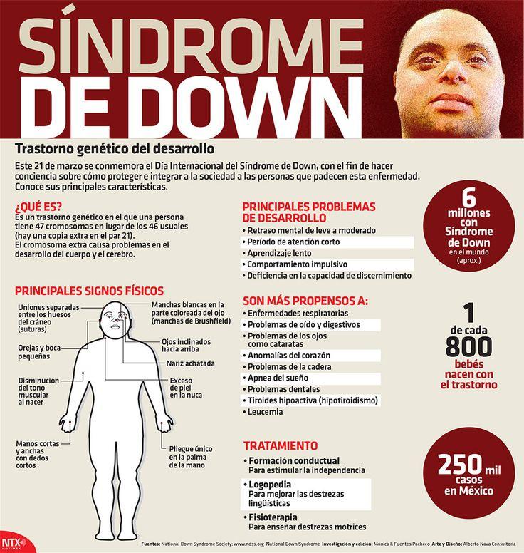 Síndrome de Down   Alto Nivel                                                                                                                                                                                 Más