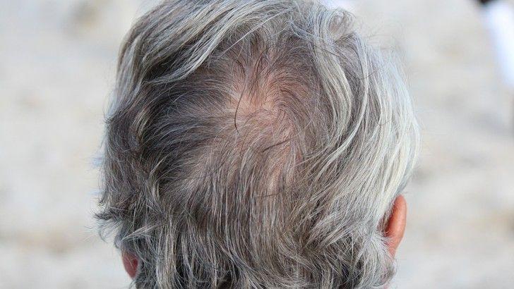Přírodní prostředky proti řídnutí vlasů