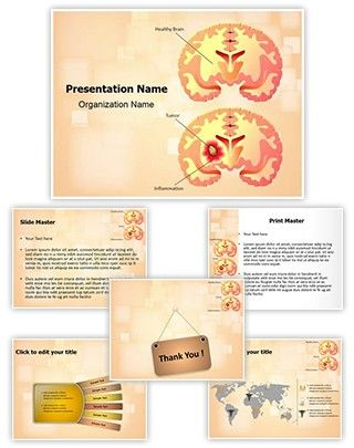 Brain Tumor PowerPoint Presentation Template is one of the best Medical PowerPoint templates by EditableTemplates.com. #EditableTemplates #Thalamus #Animal Brain #Structure #Human #Ear Nose Throat #Health Care #Medical Exam #Research #Mechanism #Cancer #Neuron #Medical #Noncancerous #Cochlea #Auditory