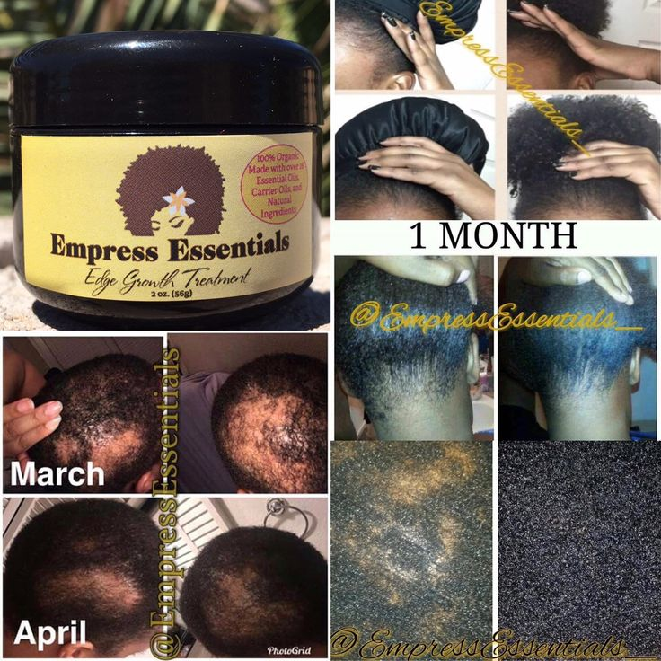 Hair Loss Therapy Hair progress Cream 1 Month Provide Balding Alopecia Skinny Edges Bald Spots For Males or Ladies Black Castor Oil