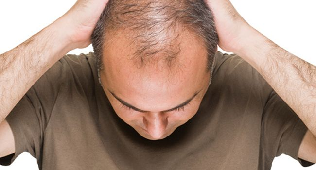 Preguntas suyas sobre la pérdida de cabello  #TrasplanteDeCabello #Calvicie #TrasplanteCapilar #TecnicaFUE #AlopeciaDeCejas #estética #cirugíaplástica #pérdidadelcabello #pérdidadecabello #trasplantedepelo #cabello