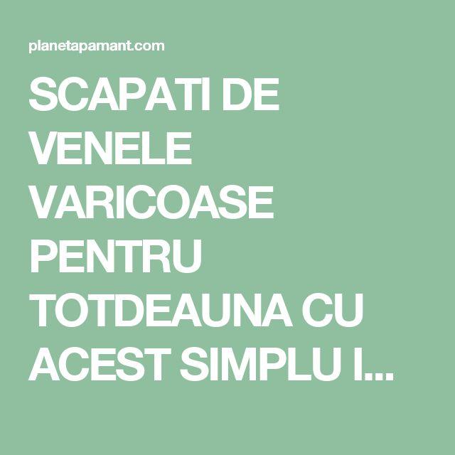 SCAPATI DE VENELE VARICOASE PENTRU TOTDEAUNA CU ACEST SIMPLU INGREDIENT!