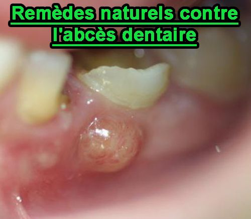 abcès-dentaire