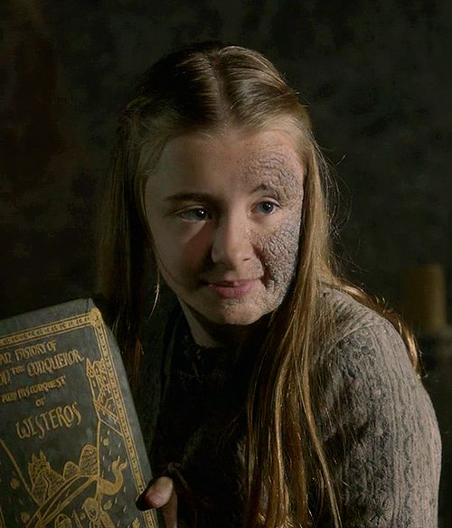 Kerry Ingram as Shireen Baratheon.