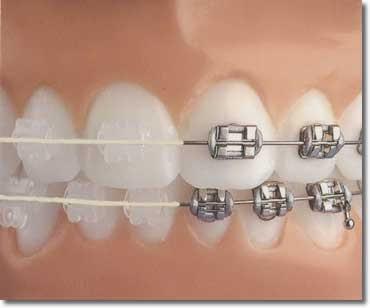 clear vs. metal braces, the choice is yours! Www.rechtetanden.nl