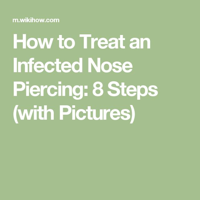 How to Treat an Infected Nose Piercing: 8 Steps (with Pictures)