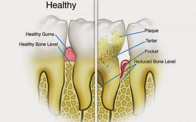 15 العلاجات المنزلية مذهلة لإزالة الجير والبلاك من الأسنان
