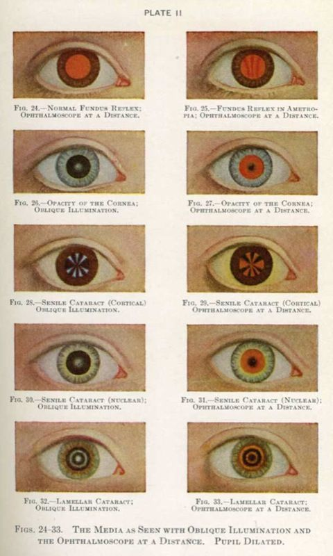 """Manual of the Diseases of the Eye,"""" Charles H. May M.D. (First edition 1900)"""