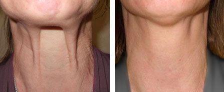 Jawline jowl tightening (Nefertiti neck lift) ~ Our treatments ~ Milo Clinic
