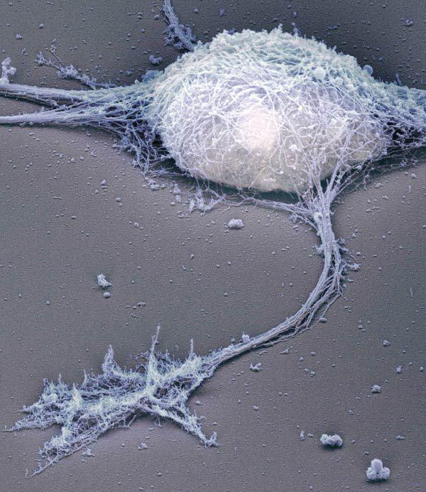 Single neuron under the electron microscope