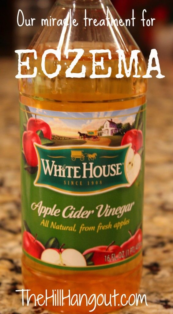 The Hill Hangout shares her story of using apple cider vinegar as a home remedy for eczema.