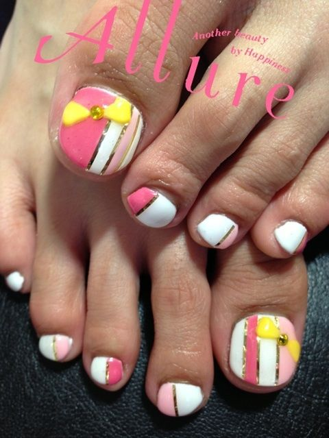 Yellow Toenails And Diabetes: 25+ Best Ideas About Bright Toe Nails On Pinterest