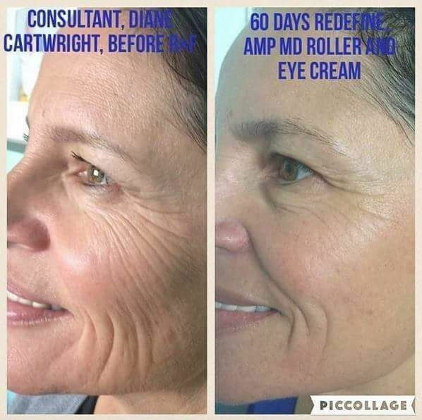 Get Rid Of Deep Wrinkles With An At Home Skincare Routine Rodan And Fields Is Clinically Proven To De Amp Md Roller Rodan And Fields Redefine Rodan And Fields