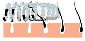 Alle gezichtsharen behoren nu tot het verleden. Zelfs met de fijnste donshaartjes rekent de Epiquick® epileer veer zeer snel af, dankzij haar unieke spiraalvorm. Nog nooit is het zo makkelijk geweest om uw gezicht te ontharen. Nooit meer een kapotte huid of langdurig een rood gezicht. De Epiquick® epileerveer trekt de haren er met wortel en al uit waardoor de haren langer weg blijven en zachter terug komen zonder de huid te beschadigen.