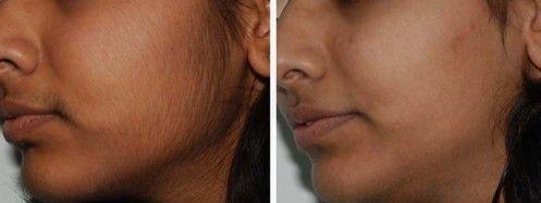 Remèdes naturels pour enlever les poils indésirables du visage