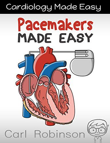 Pacemakers Made Easy: The Pacemaker Manual (Cardiology Made Easy Book 1) eBook: Carl Robinson: Amazon.co.uk: Kindle Store