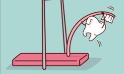 www.welovesolo.com ?amp=1&s=Tooth+cartoon