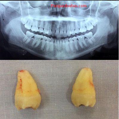 ¿Porque duelen las #muelas del juicio? #dentista #dolor #dientes #dentist