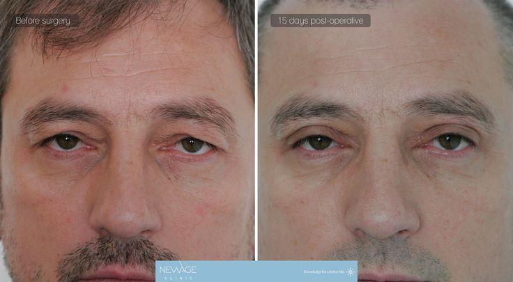 Chirurgia delle palpebre ///  #chirurgiaplastica #estetica #aumentodelselo #iniezionidigrasso #Chirurgiadellepalpebre #blefaroplastica