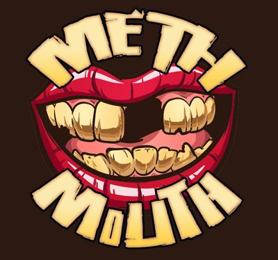 """Did you know? Methamphetamine use can cause """"meth mouth,"""" where a meth user's teeth become broken, stained, and rotten, and may eventually fall out."""