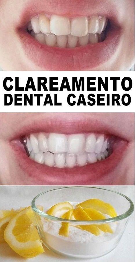 Receita Simples De Clareador Dental Caseiro Passo A Passo