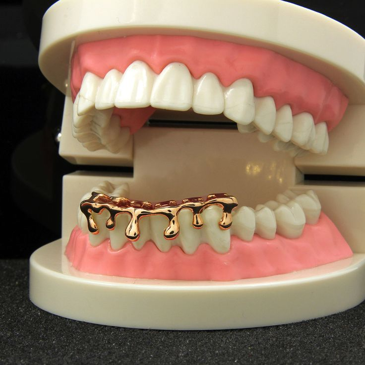 **50% OFF** SALE! 14k Rose Gold Plated Drip Bottom Grillz