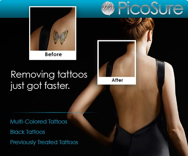 PicoSURE! Best tattoo removal out there! Visit our website for more information. www.opencanvaslaser.com