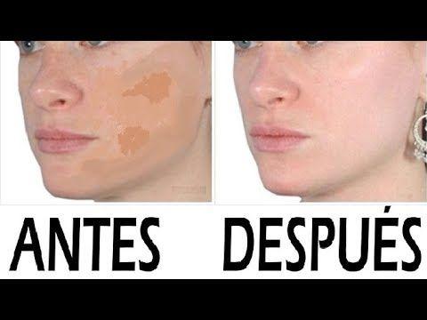 MANCHAS EN LA CARA COMO QUITARLAS | Trucos y Remedios caseros para blanquear la piel - YouTube