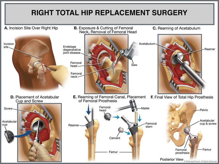 17 Best Images About Hip Replacement On Pinterest