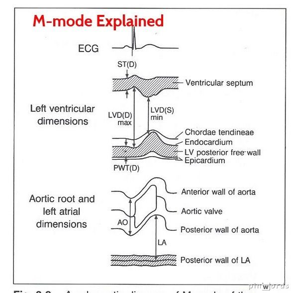 13 best images about LV Diastolic Function on Pinterest ...