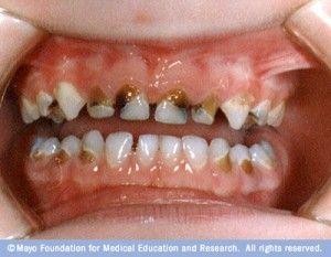 """""Cavities in Children""     Link: http://www.dental-public-health.com/dental-cavity.html    Link:  www.ruheejaffer.com"