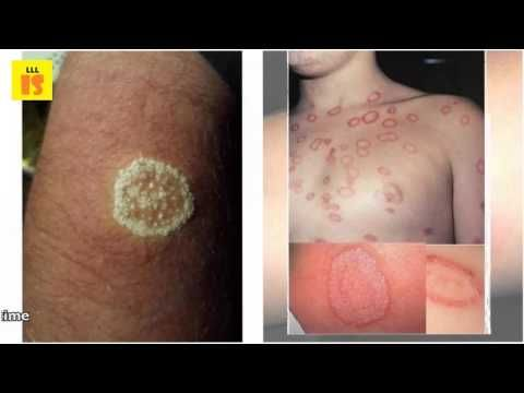 Coconut Oil For Ringworm - Home Remedies To Get Of Ringworms