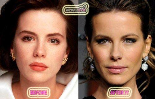 Kate Beckinsale Nose Job