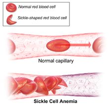 Sickle-cell disease - may cause leg and foot ulcer (as my father has) and sore axillary lymph nodes, deficiency of vitamin B12 and vitamin D (as I have). I also have constant anemias that improve after vitamin B12 injections. I know that the nutrient deficiency is causing constant inflammation and migraines.When I take the supplements I feel better.
