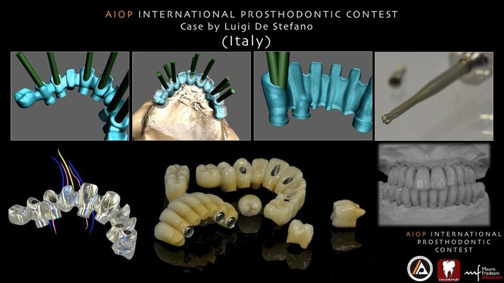 Case report by Luigi De Stefano, Italy. Complex maxillo-mandibular Prostethic Rehabilitation on natural teeth and implants, with modification of the screw access channels and CAD/CAM modeling of the frameworks.  more on: https://www.facebook.com/media/set/?set=a.10152815137733970.1073741926.134992723969&type=1