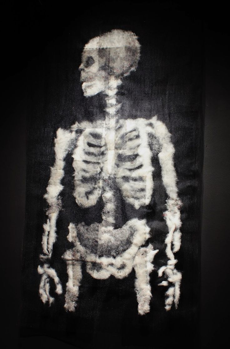 Specimen # 23.Xray .soft tissue anatomy sculpture by Andrew Delaney .Anno Domini Home . The Vivisector . Pic by Vikki Kassioras