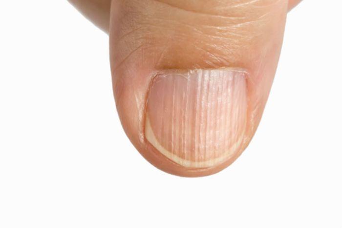 fingernail health, ridges on nails