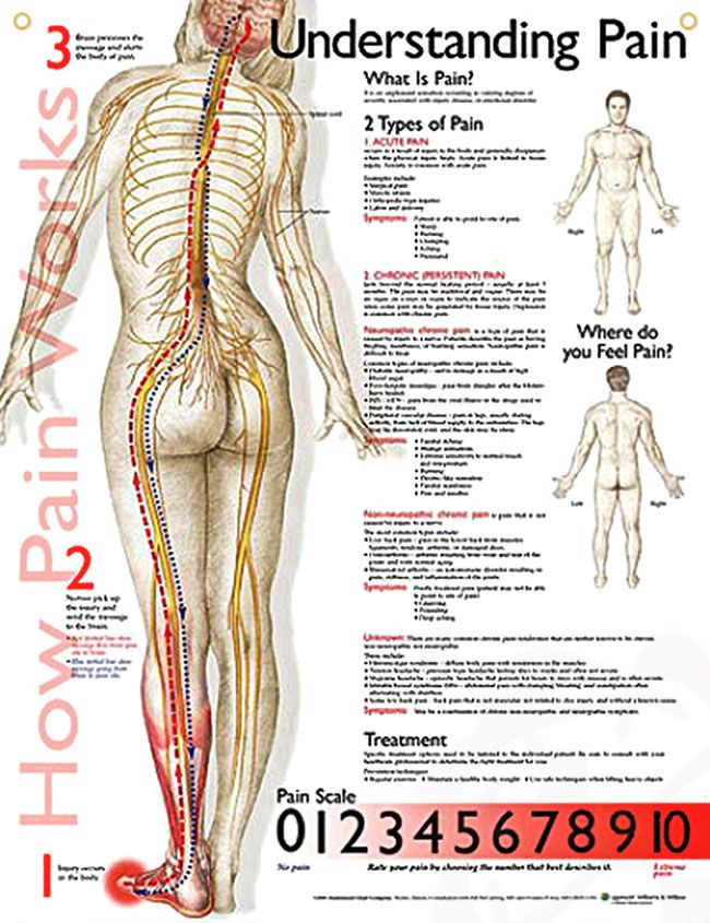 Understanding Pain anatomy poster defines the types of pain, lists symptoms for each and includes a pain scale.