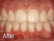Visit our site to see the before and this amazing transformation! http://sabariortho.com/orthodontic-treatment/common-orthodontic-treatments