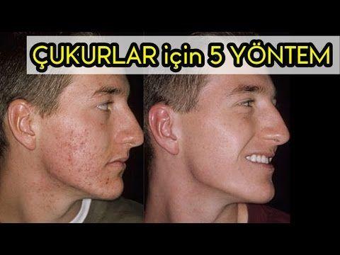 SİVİLCE İZLERİNİ YOK ETME 2 ACNELYS / SORU CEVAP - YouTube