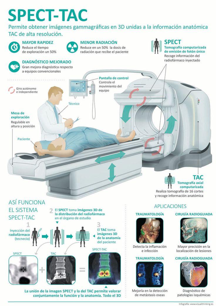 29 de marzo de 2017 El Hospital Universitario Quirónsalud Madrid ha adquirido para su servicio de Medicina Nuclear e Imagen Molecular un nuevo SPECT-TAC...